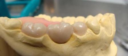 Imagem da notícia: Técnicos de prótese dentária no centro de polémica