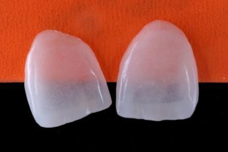 Imagem da notícia: 'Lentes de contacto' protegem e corrigem dentes