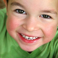 Imagem da notícia: Prótese em Odontopediatria