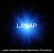 Imagem da notícia: Novo laser torna a colocação de implantes mais fácil