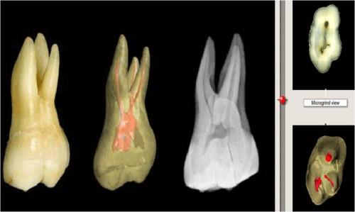 Imagem da notícia: 3D Tooth Atlas é atualizado