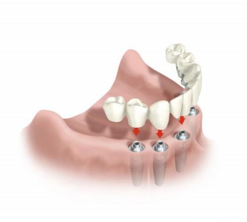 Imagem da notícia: Implantes dentários nem sempre são opção acertada