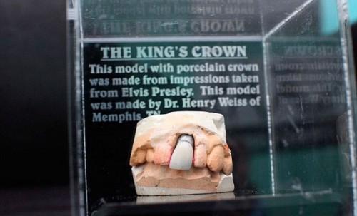 Imagem da notícia: A prótese dentária mais famosa do mundo?