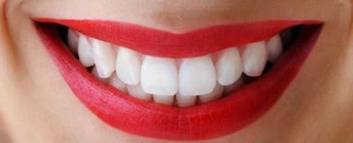 Imagem da notícia: 'Kits' para branqueamento dentário podem ser perigosos