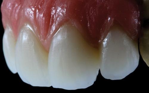 Imagem da notícia: Curso de Estética Funcional para técnicos de prótese dentária