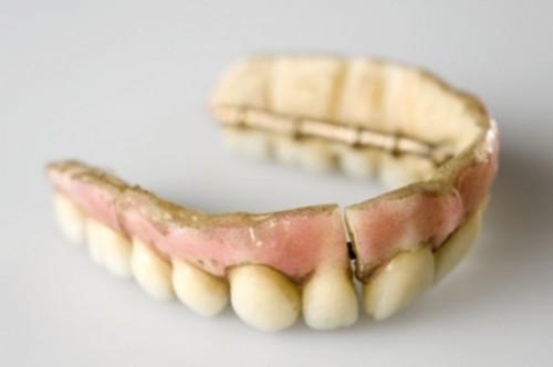 Imagem da notícia: Prótese dentária – uma perspetiva histórica
