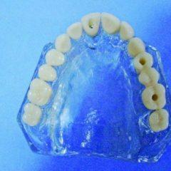 Imagem da notícia: Proposta de próteses temporárias como uma solução imediata para a implantologia