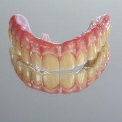 Imagem da notícia: Um trabalho completo para paciente exigente: reabilitação superior sobre implantes em zircónio maciço (sem cerâmica)