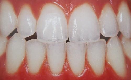 Imagem da notícia: Descoberto potencial tratamento duradouro para sensibilidade dentária