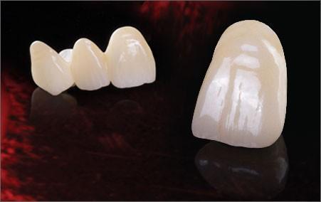 Imagem da notícia: Novas soluções em zirconia para CAD/CAM