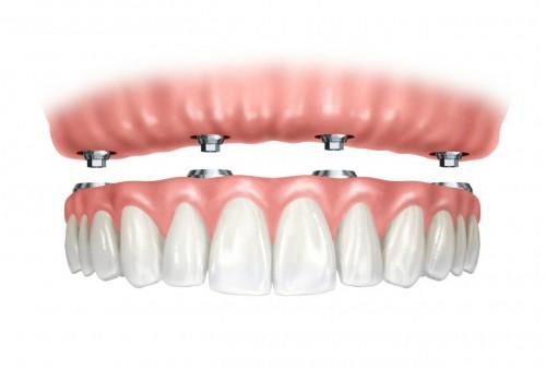 """Imagem da notícia: OMD diz que Fisco """"discrimina"""" próteses dentárias com taxa máxima de IVA"""