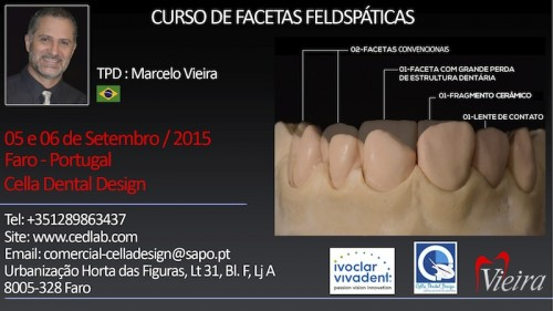 Imagem da notícia: Curso de Facetas Feldspáticas