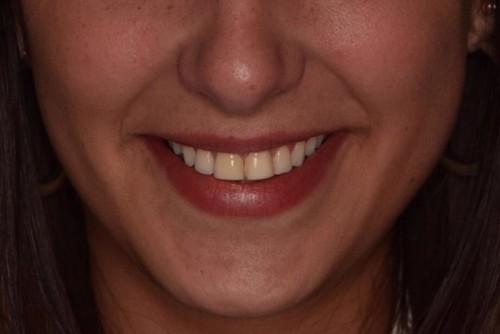 Imagem da notícia: Recuperar um sorriso com soluções Handmade
