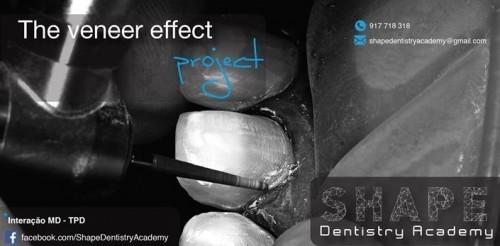 """Imagem da notícia: """"The veneer effect project"""" está a chegar!"""