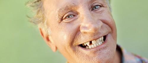Imagem da notícia: Perda de dentes pode ser evitada com vidro bioativo