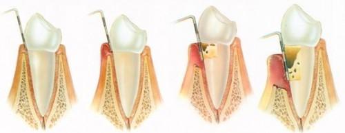 Imagem da notícia: Ligação entre periodontite e doenças cardiovasculares