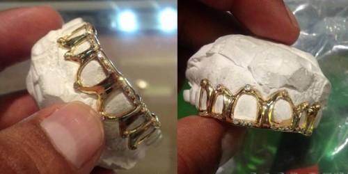 Imagem da notícia: Branqueamento dentário e inovação acabam com ouro