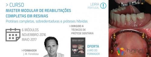 Imagem da notícia: J. M. Fonollosa: Curso Master Modular de Reabilitações Completas em Resinas