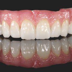 Imagem da notícia: Prettau® Anterior® Multistratum® –  a zirconia pré-colorida da Zirkonzahn