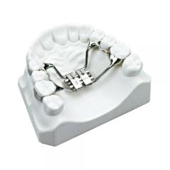 Imagem da notícia: Dentaldente apresenta expansor de palato da Leone