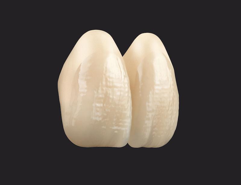 Imagem da notícia: VITA VIONIC VIGO: beleza e inteligência para próteses digitais