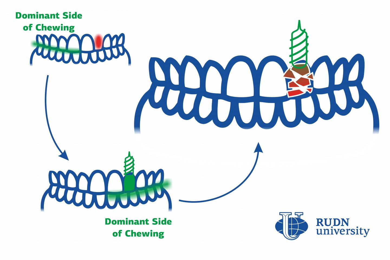 Imagem da notícia: Estudo explica dano precoce de implantes dentários