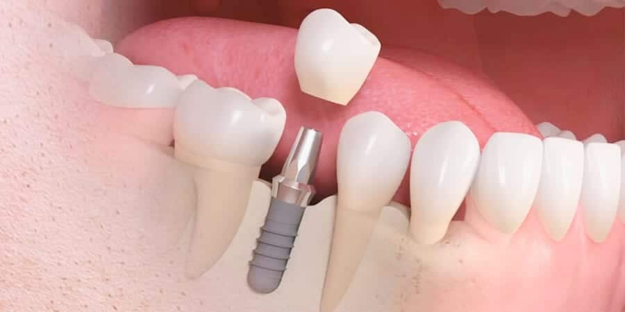 Imagem da notícia: Debate: Importância dos ossos nos implantes dentários