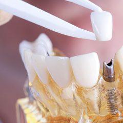 Imagem da notícia: Curso: Técnicas e aplicações para casos de implantes dentários