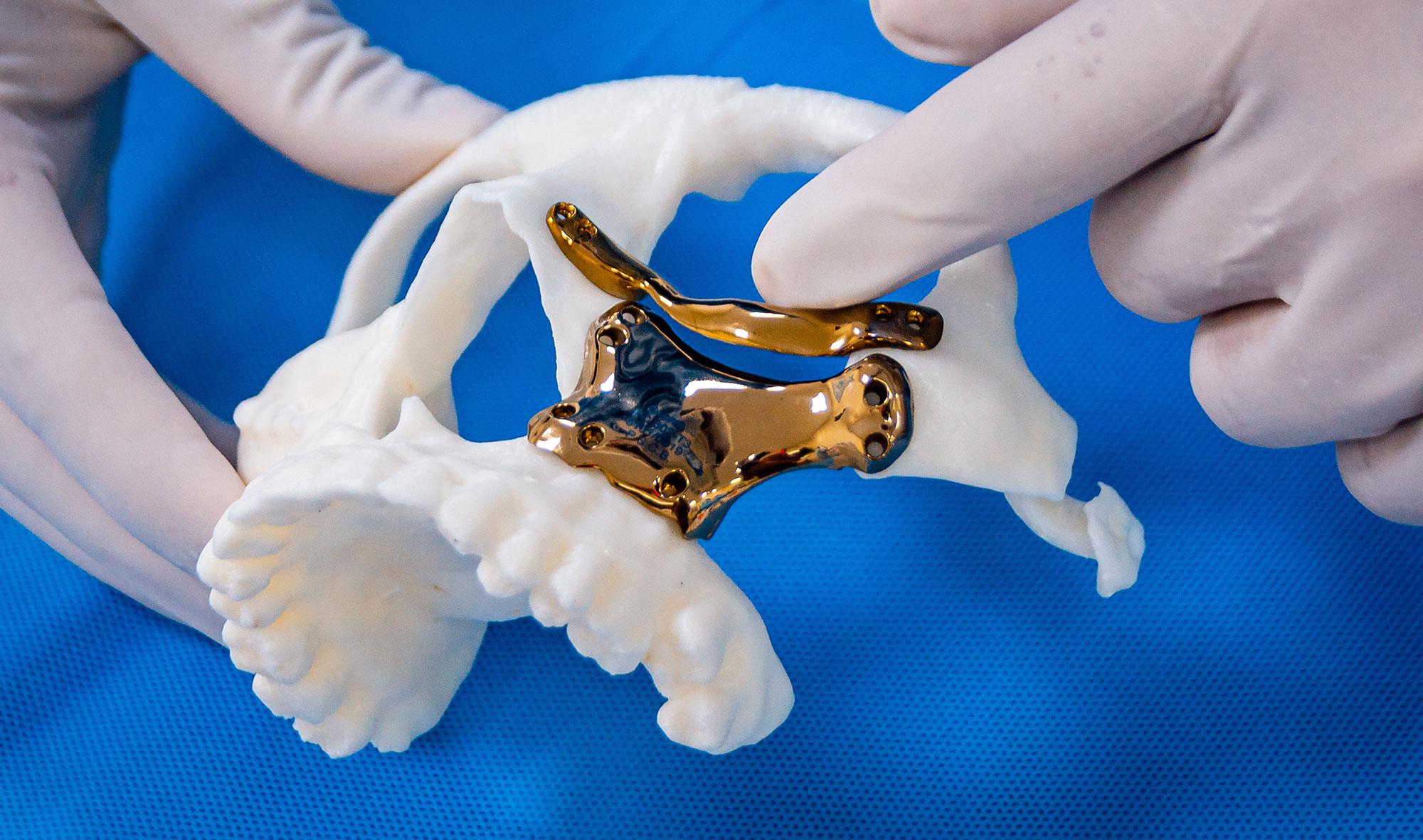 Imagem da notícia: Novo regulamento de dispositivos médicos da UE já entrou em vigor
